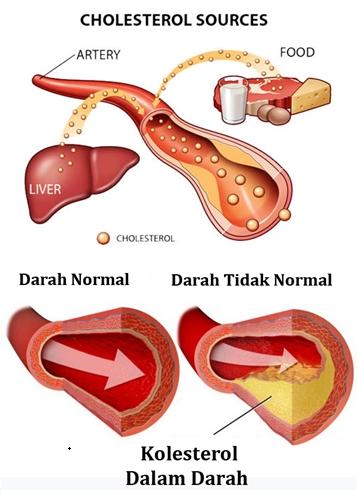 Hasil riset tersebut menemukan terdapat 50% kasus PJK (jantung koroner) akibat peningkatan kadar kolesterol dan sekitar 70% kasus strok akibat sumbatan pembuluh darah di otak.